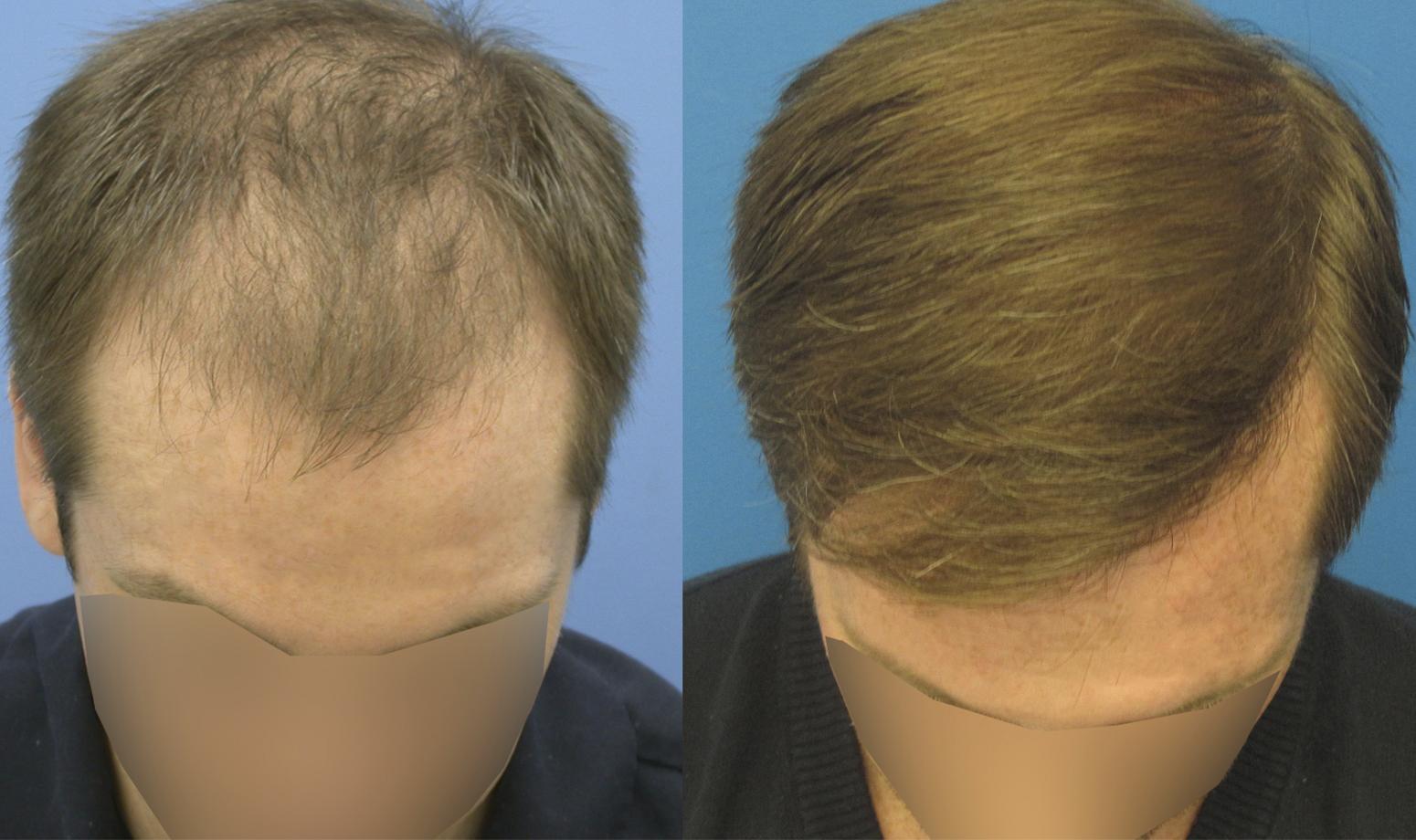 Диффузная алопеция у мужчин симптомы лечение фото