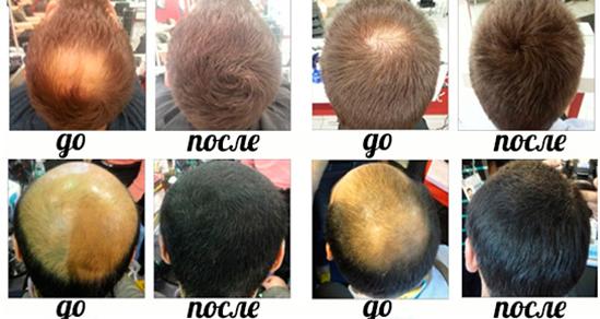 Самая эффективная маска стимулирующая рост волос